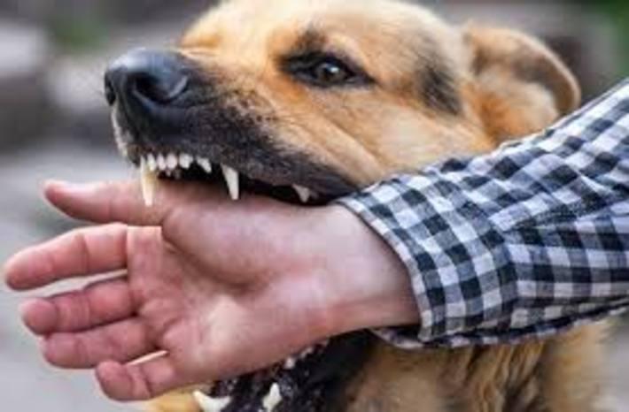 گازگرفتگی سگ را در خانه درمان کنید گازگرفتگی سگ را در خانه درمان کنید